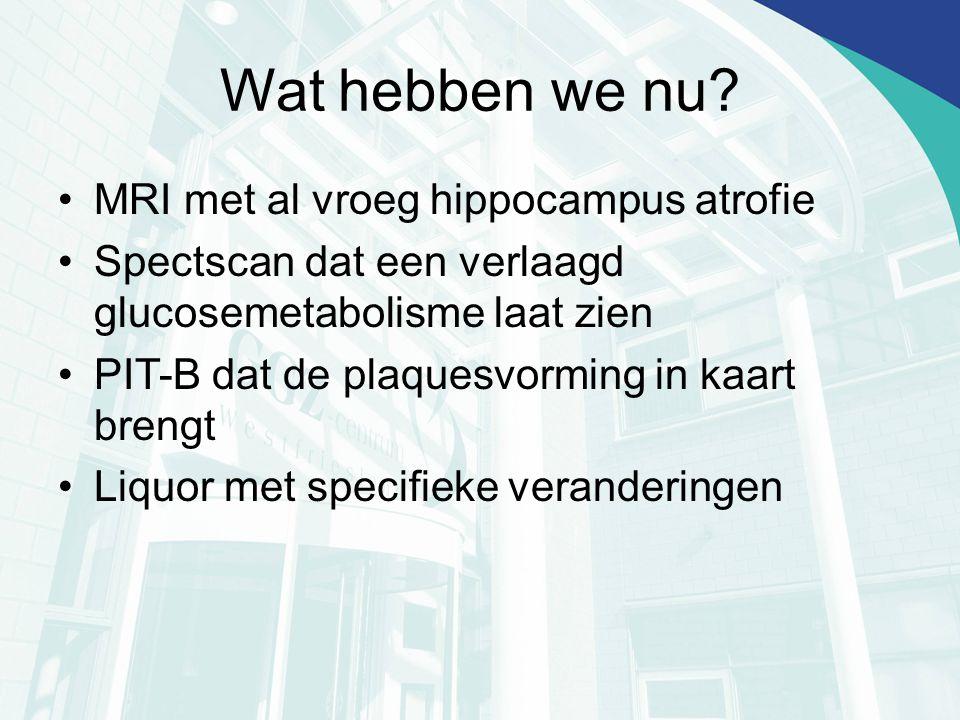 Wat hebben we nu MRI met al vroeg hippocampus atrofie