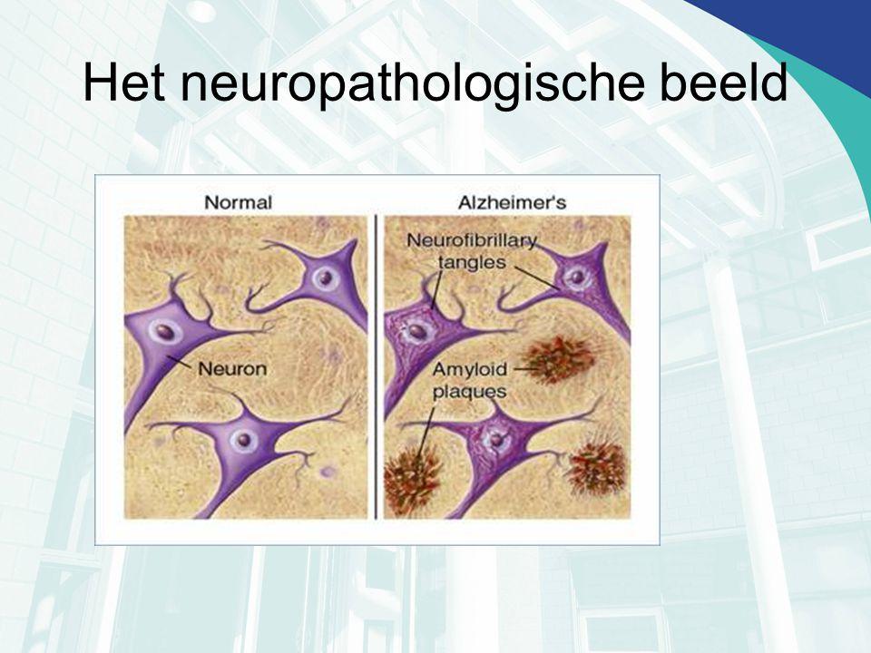 Het neuropathologische beeld