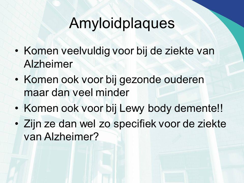 Amyloidplaques Komen veelvuldig voor bij de ziekte van Alzheimer