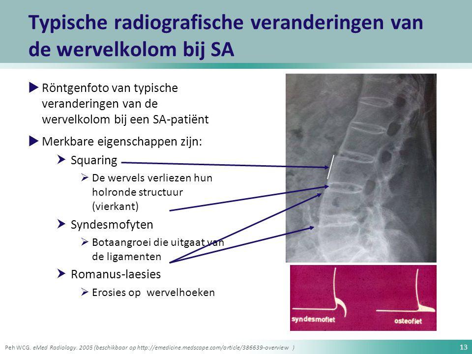 Typische radiografische veranderingen van de wervelkolom bij SA