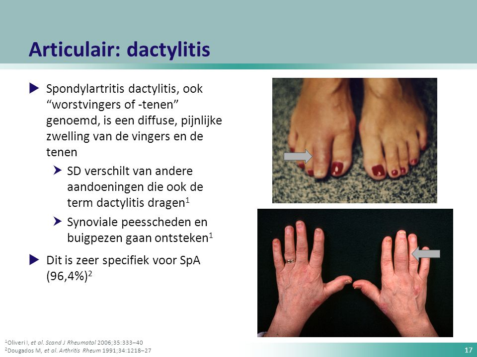 Articulair: dactylitis