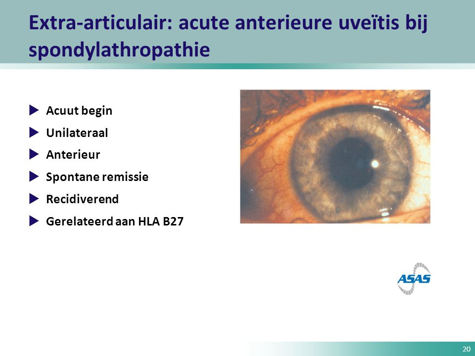 Extra-articulair: acute anterieure uveïtis bij spondylathropathie