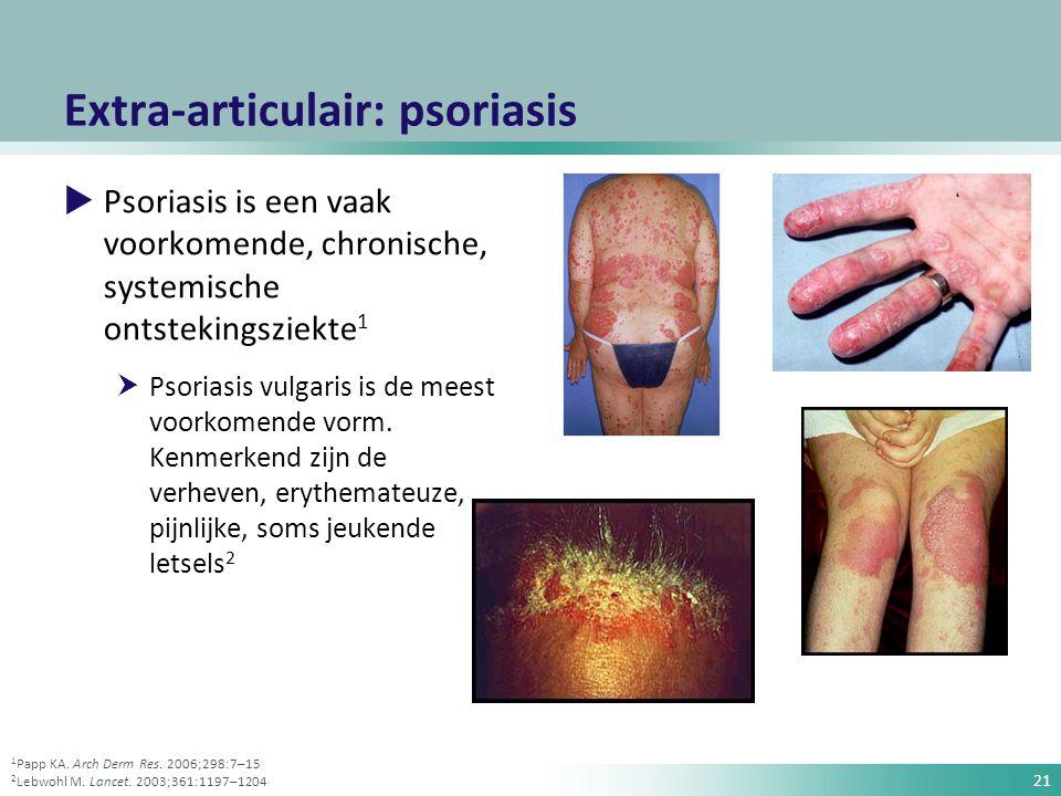 Extra-articulair: psoriasis