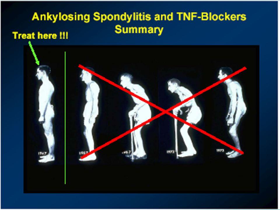 Spondylitis ankylopoetica en TNF-remmers