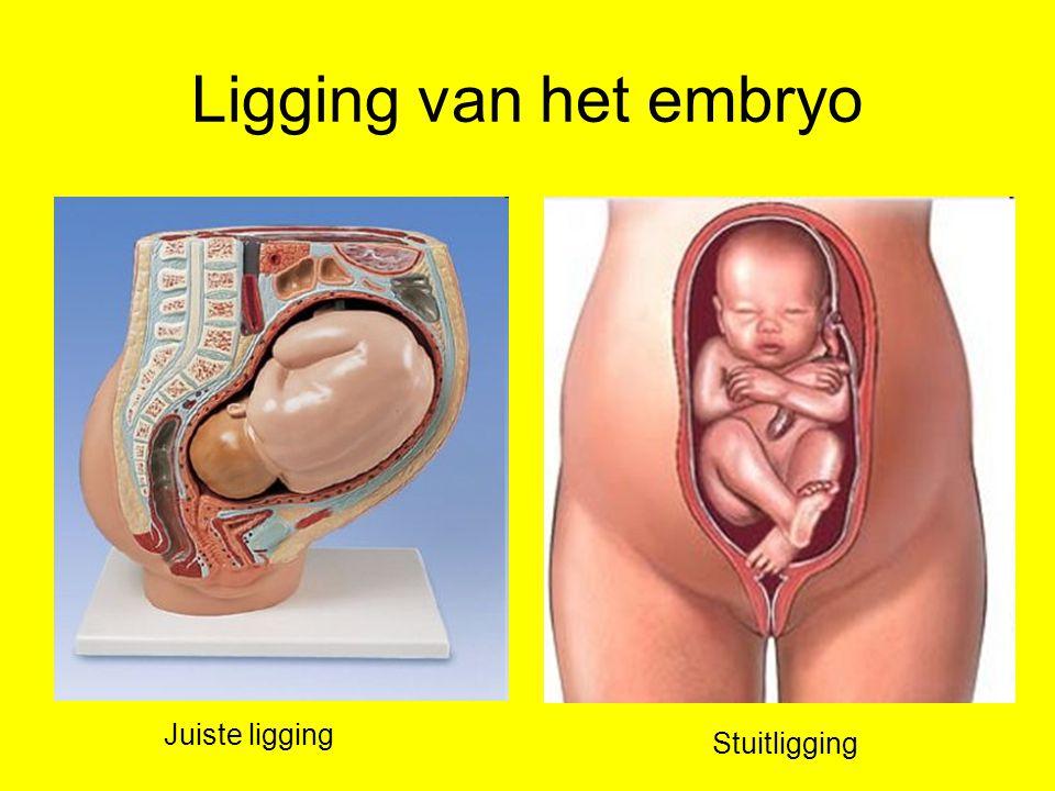 Ligging van het embryo Juiste ligging Stuitligging