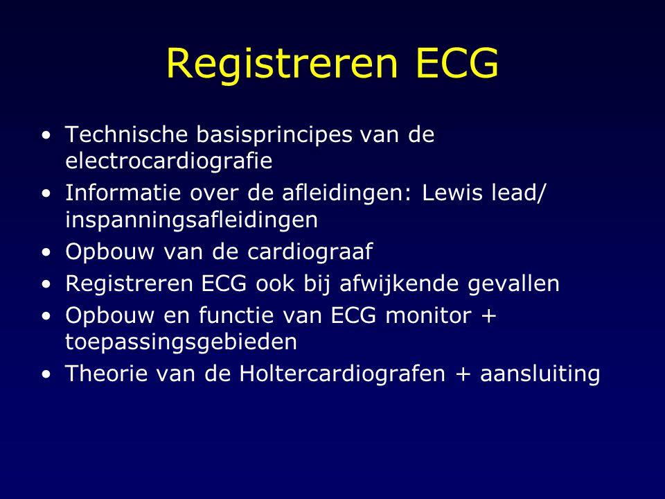 Registreren ECG Technische basisprincipes van de electrocardiografie