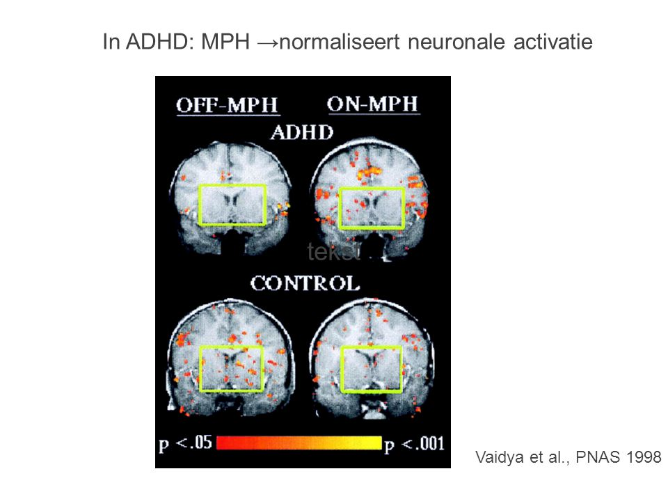 tekst In ADHD: MPH →normaliseert neuronale activatie