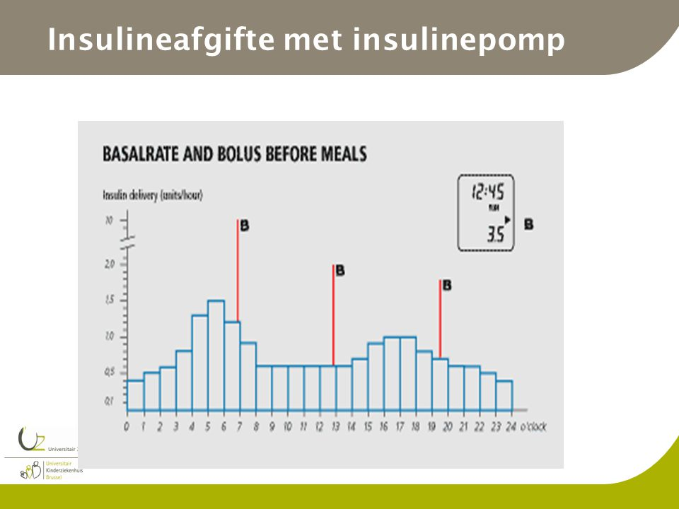 Insulineafgifte met insulinepomp