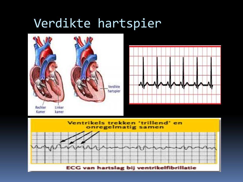 Verdikte hartspier