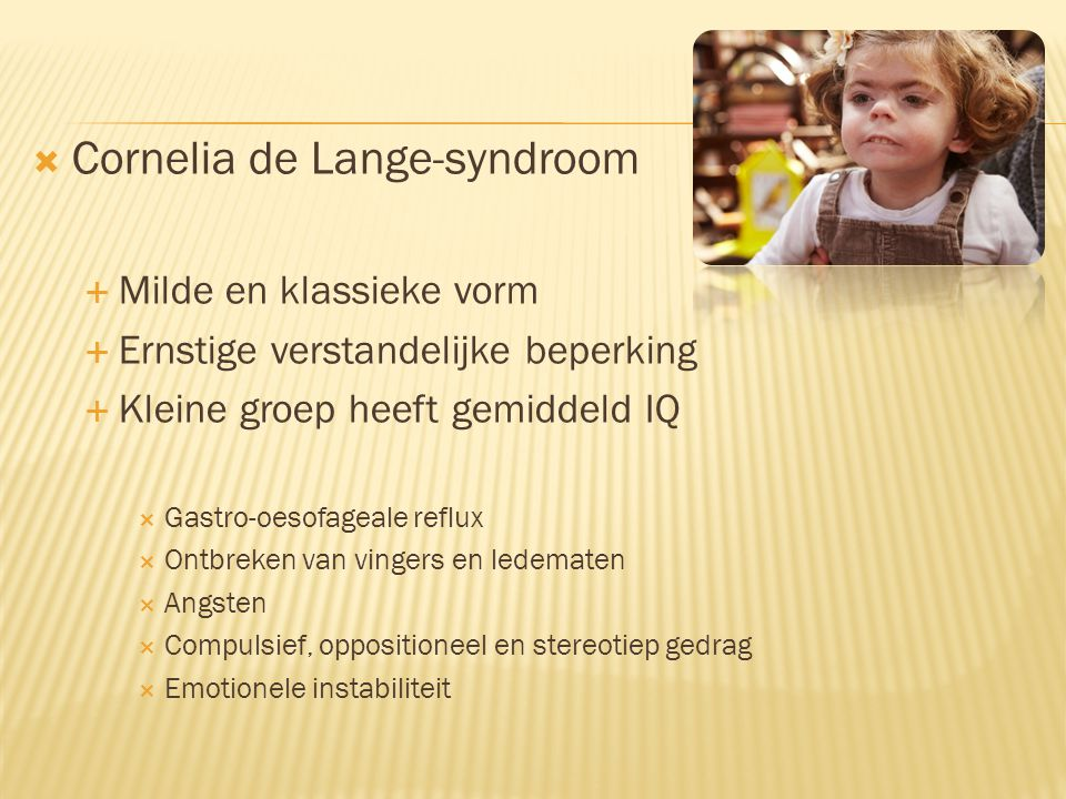 Cornelia de Lange-syndroom