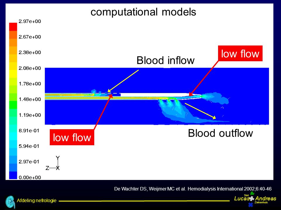 computational models Blood inflow Blood outflow low flow