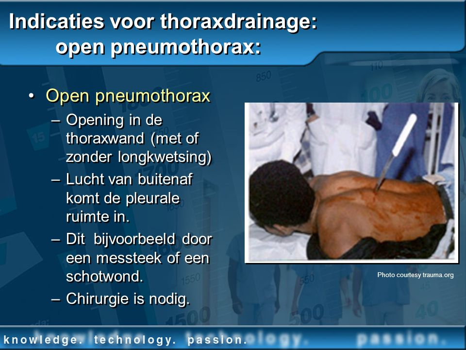 Indicaties voor thoraxdrainage: open pneumothorax: