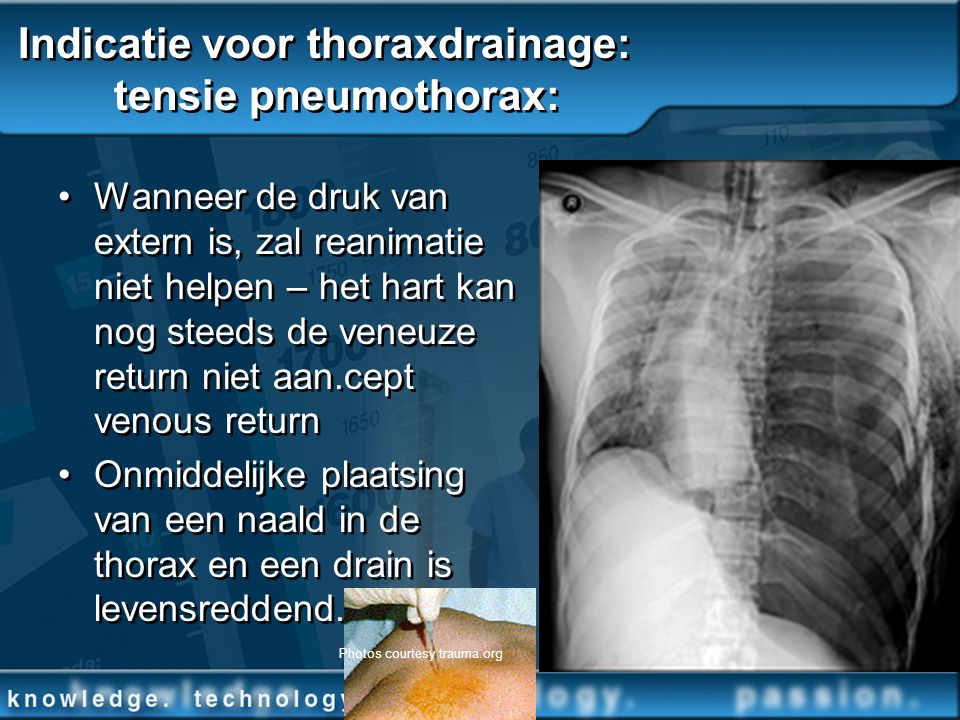 Indicatie voor thoraxdrainage: tensie pneumothorax: