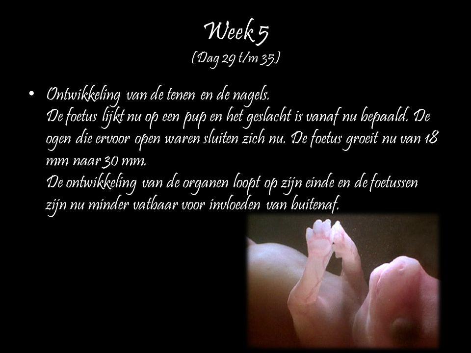 Week 5 (Dag 29 t/m 35)