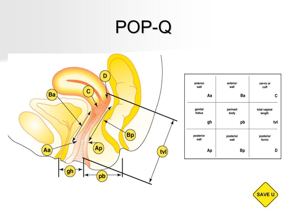 POP-Q