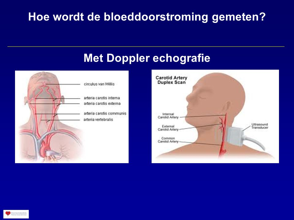 Hoe wordt de bloeddoorstroming gemeten Met Doppler echografie
