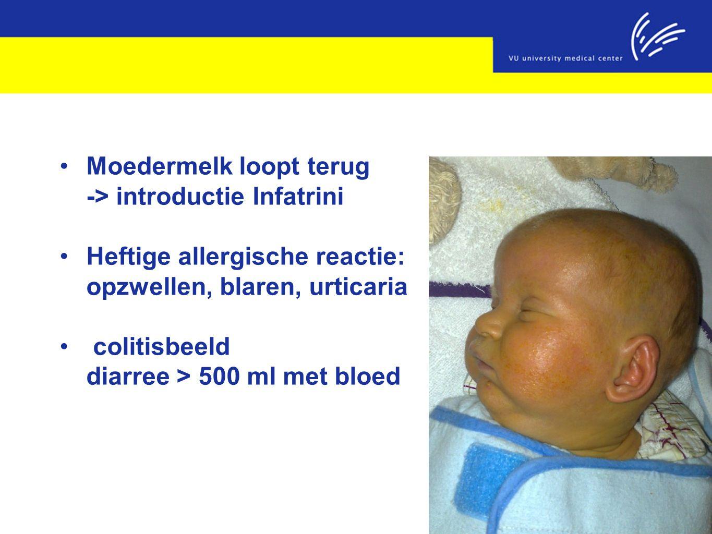 Moedermelk loopt terug -> introductie Infatrini