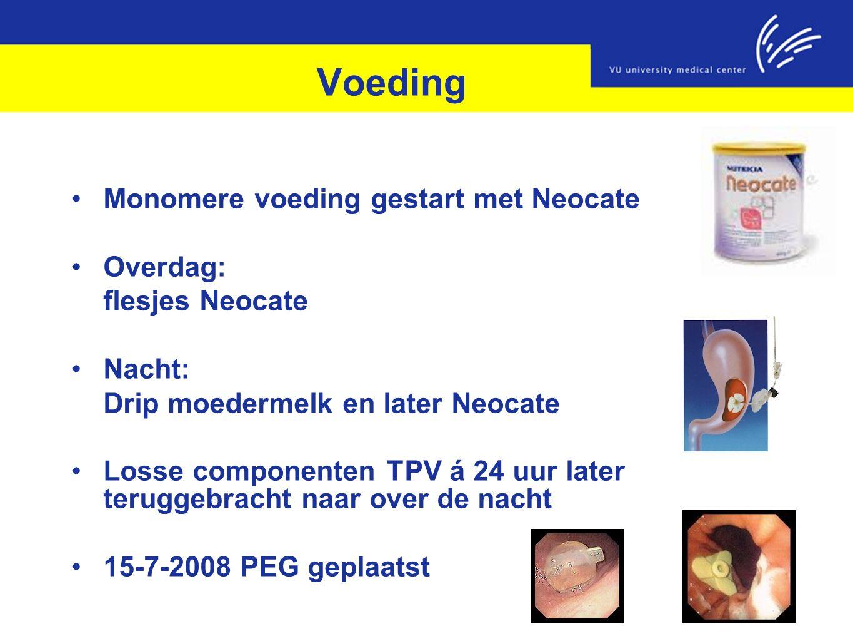 Voeding Monomere voeding gestart met Neocate Overdag: flesjes Neocate