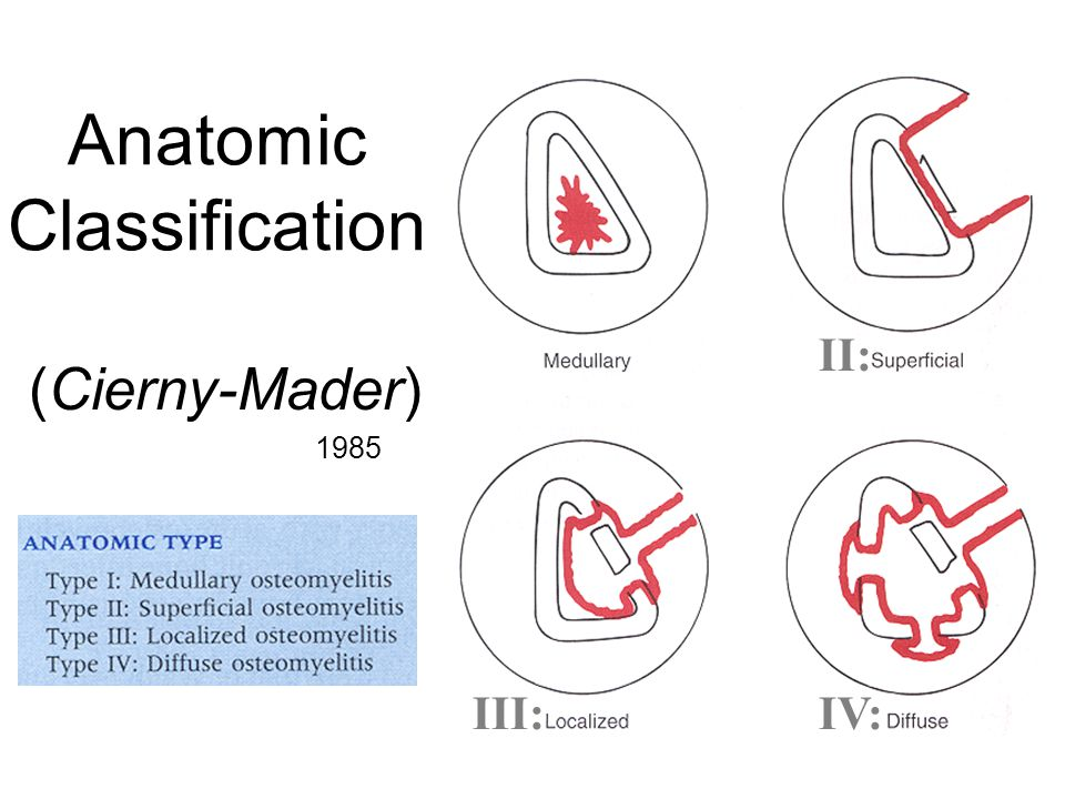 Anatomic Classification