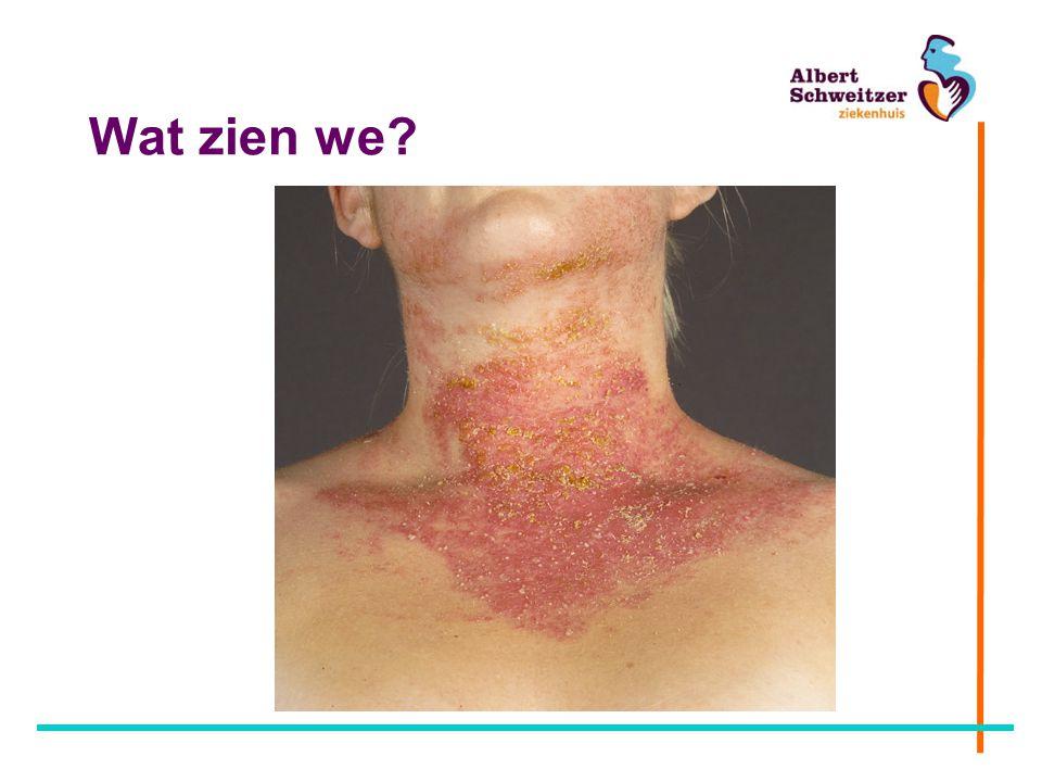 Wat zien we Bacteriële infectie bij eczeem.