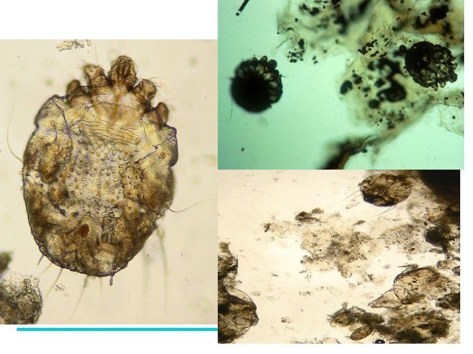 Scabies onder microscoop