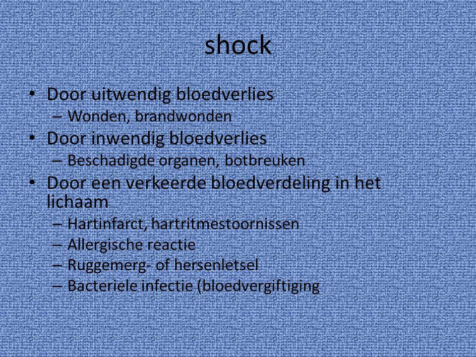 shock Door uitwendig bloedverlies Door inwendig bloedverlies