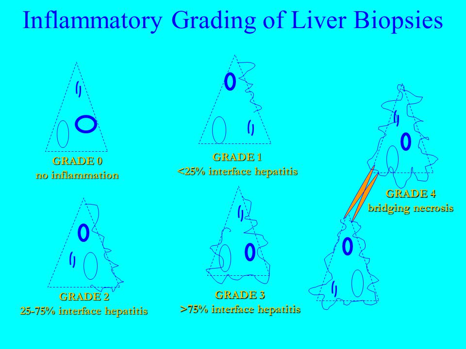Inflammatory Grading of Liver Biopsies