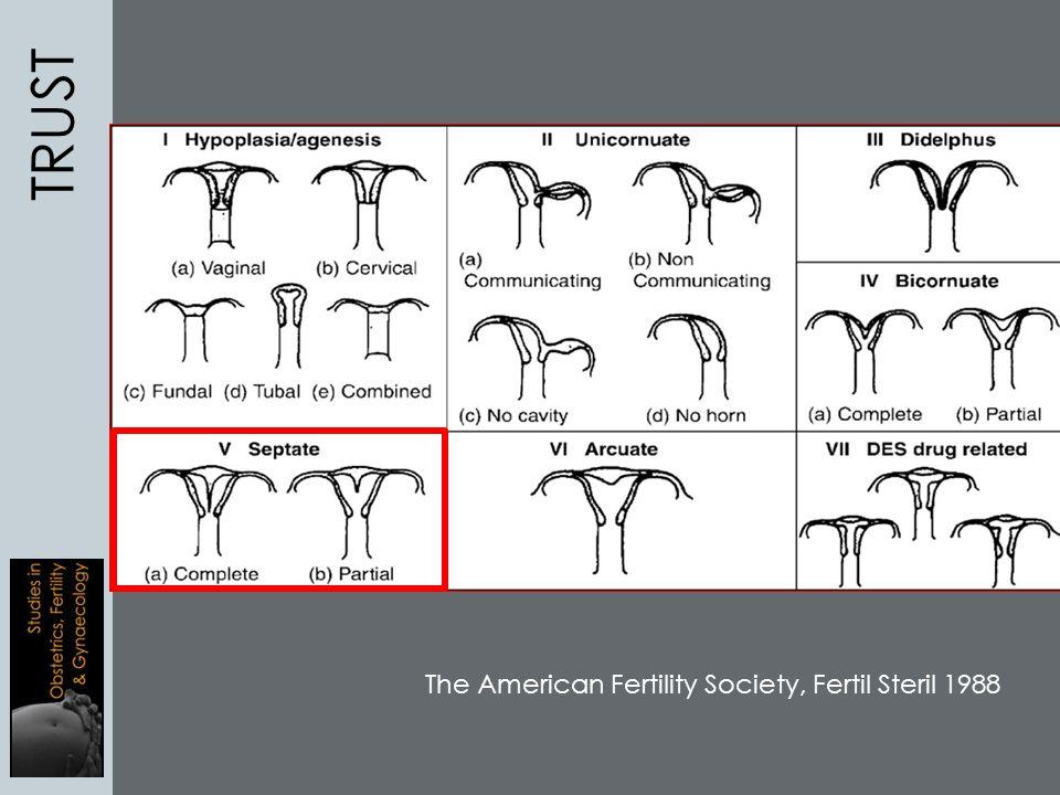 TRUST The American Fertility Society, Fertil Steril 1988