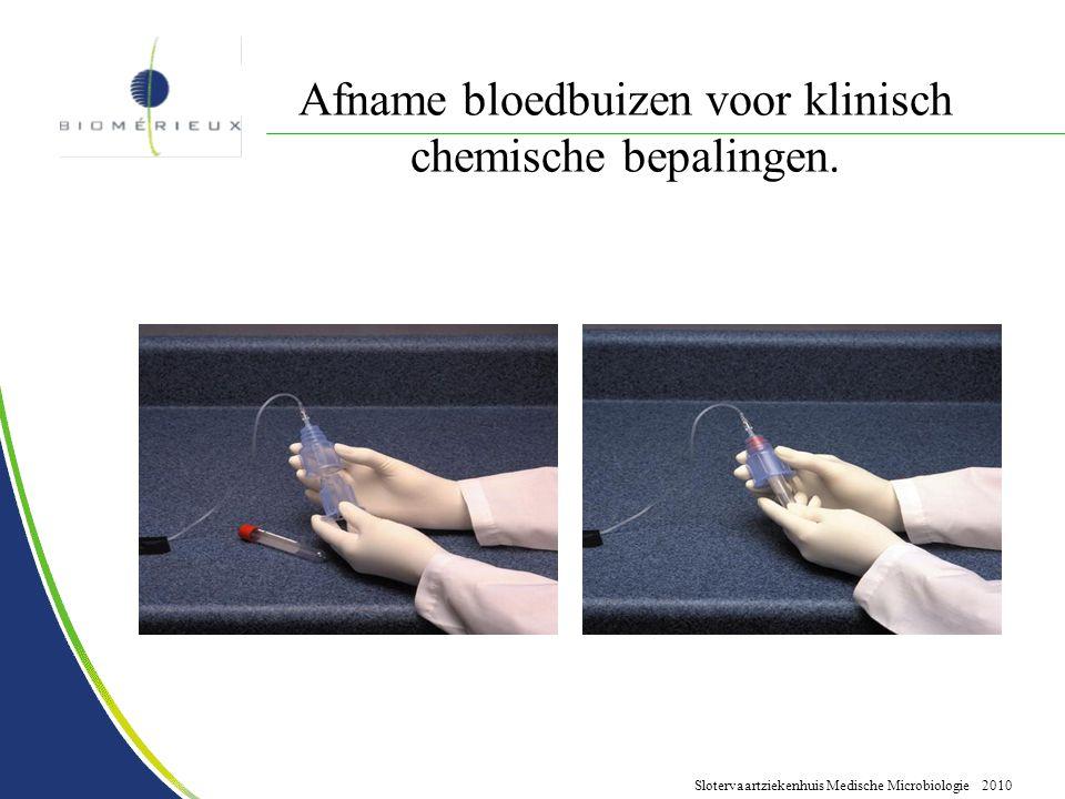 Afname bloedbuizen voor klinisch chemische bepalingen.
