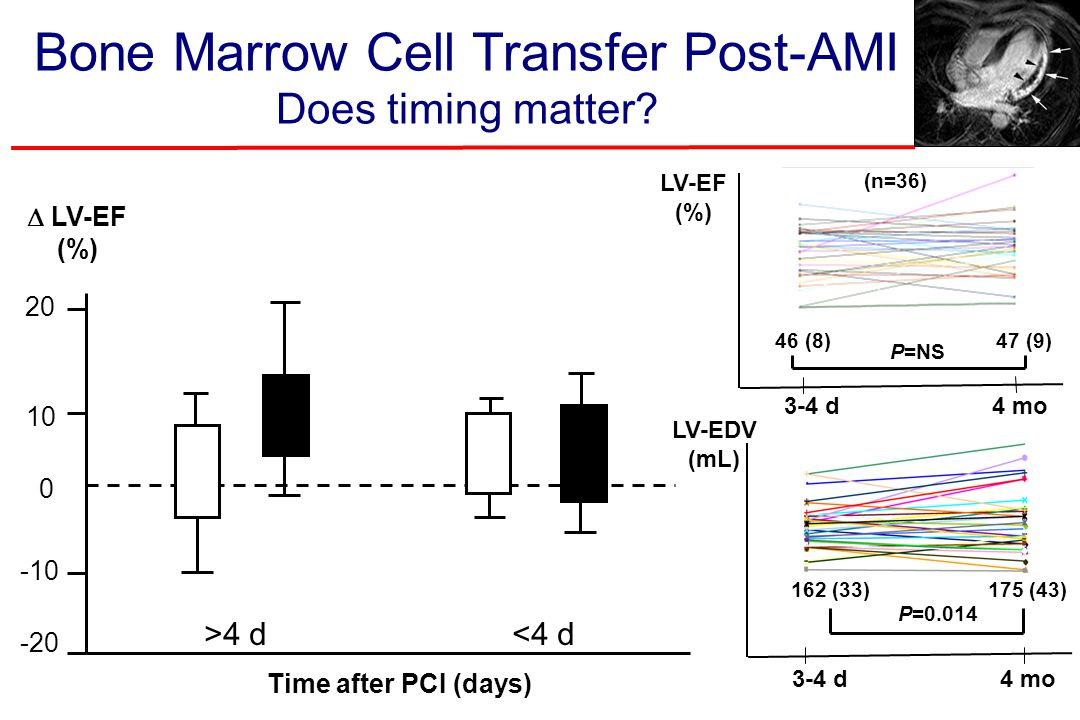 Bone Marrow Cell Transfer Post-AMI Does timing matter