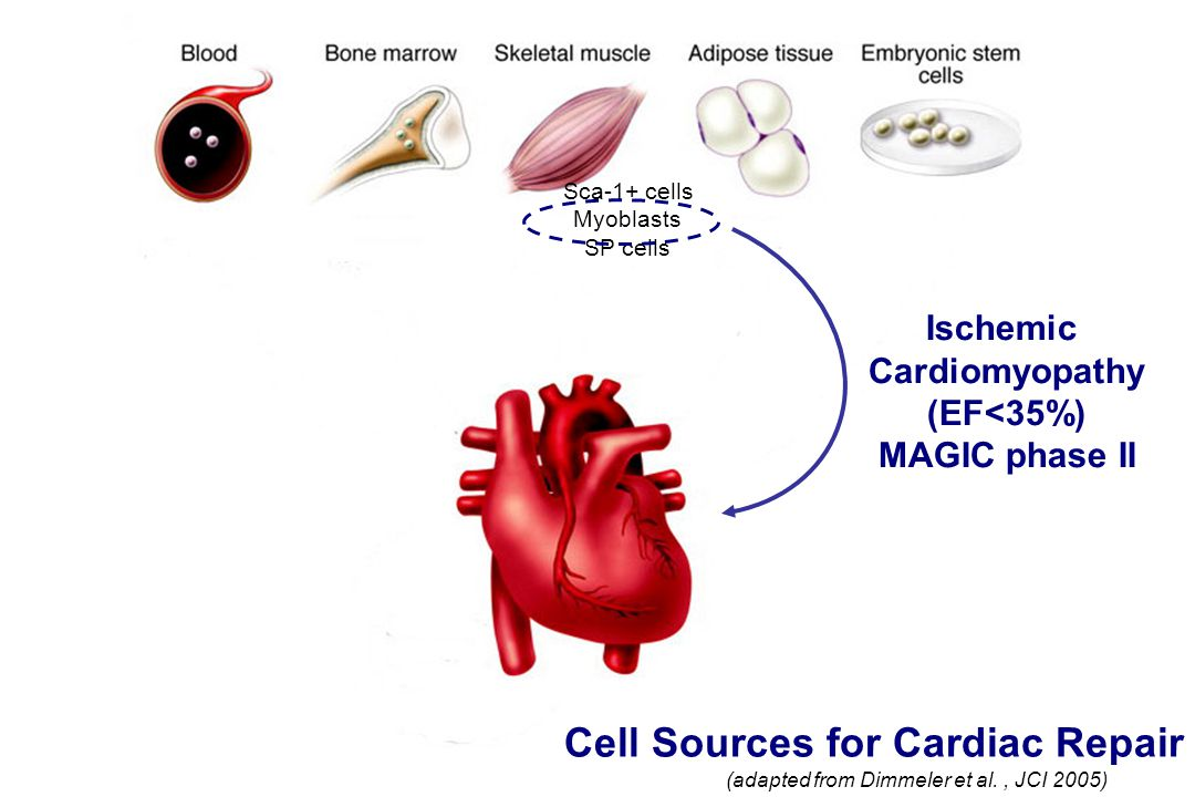 Cell Sources for Cardiac Repair