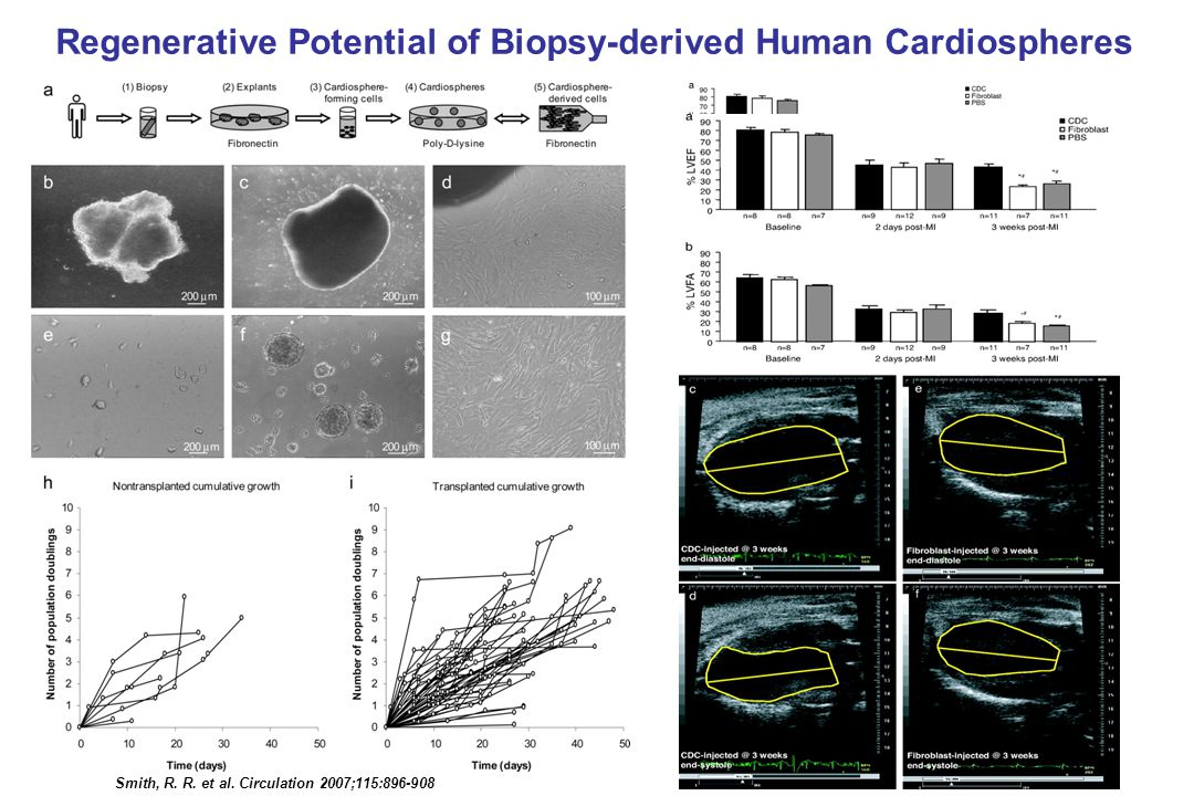 Regenerative Potential of Biopsy-derived Human Cardiospheres