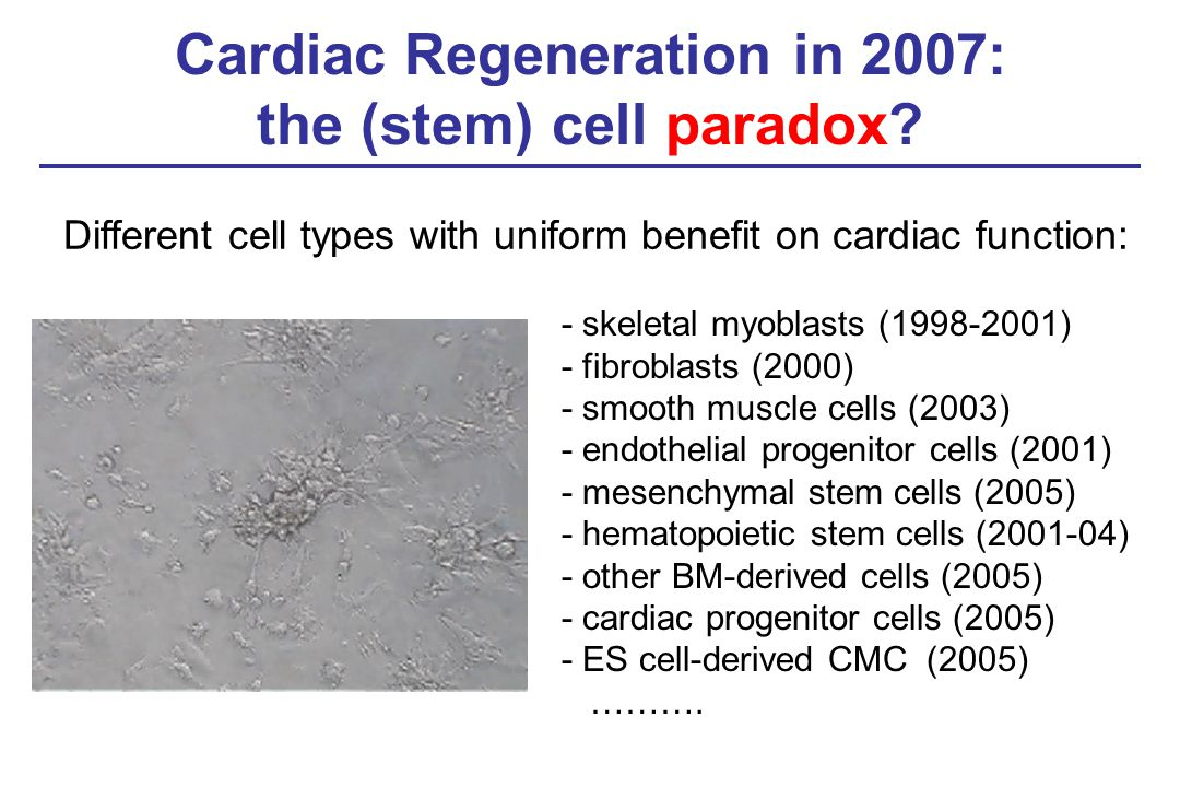 Cardiac Regeneration in 2007: the (stem) cell paradox