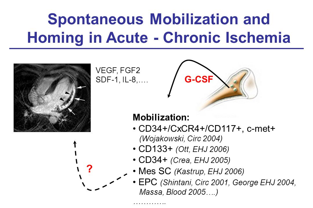 Spontaneous Mobilization and Homing in Acute - Chronic Ischemia