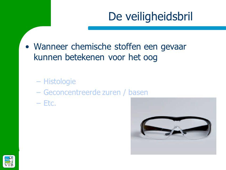 De veiligheidsbril Wanneer chemische stoffen een gevaar kunnen betekenen voor het oog. Histologie.