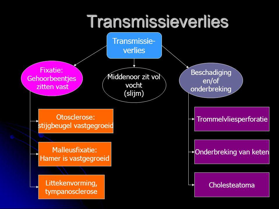 Transmissieverlies Transmissie- verlies Fixatie: