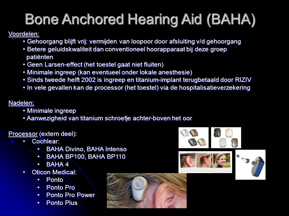 Bone Anchored Hearing Aid (BAHA)