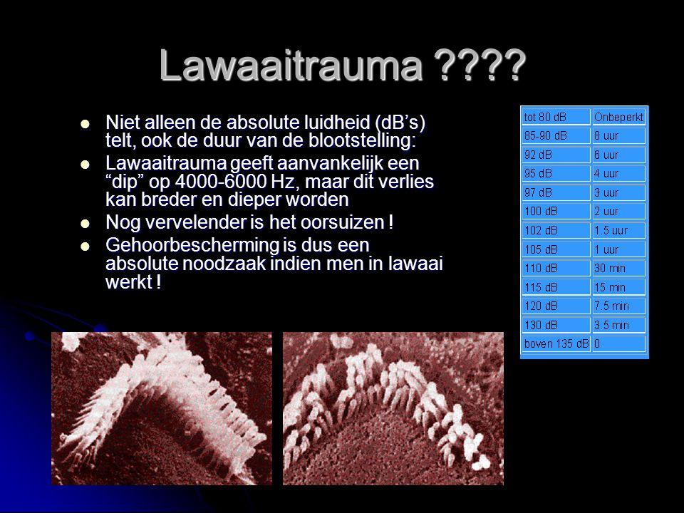 Lawaaitrauma Niet alleen de absolute luidheid (dB's) telt, ook de duur van de blootstelling: