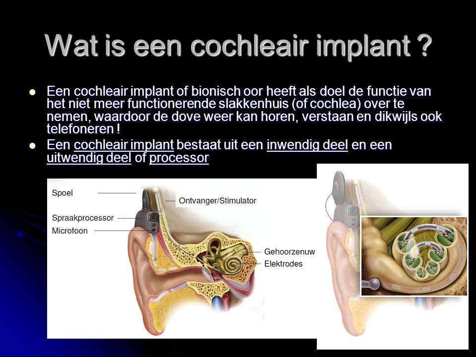 Wat is een cochleair implant