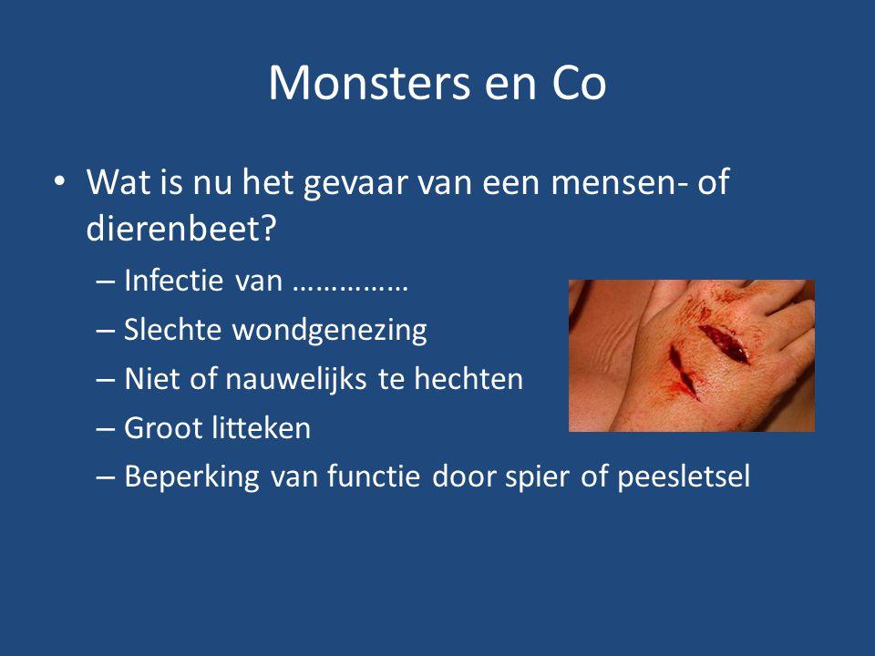 Monsters en Co Wat is nu het gevaar van een mensen- of dierenbeet