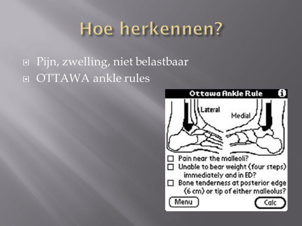 Hoe herkennen Pijn, zwelling, niet belastbaar OTTAWA ankle rules