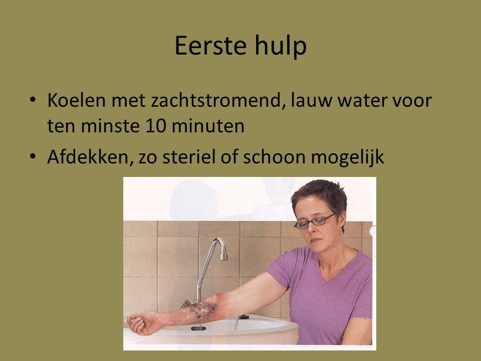 Eerste hulp Koelen met zachtstromend, lauw water voor ten minste 10 minuten.