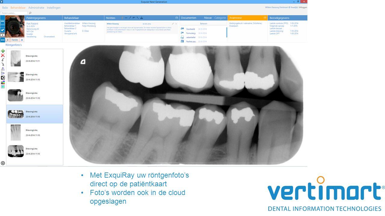 Met ExquiRay uw röntgenfoto's direct op de patiëntkaart