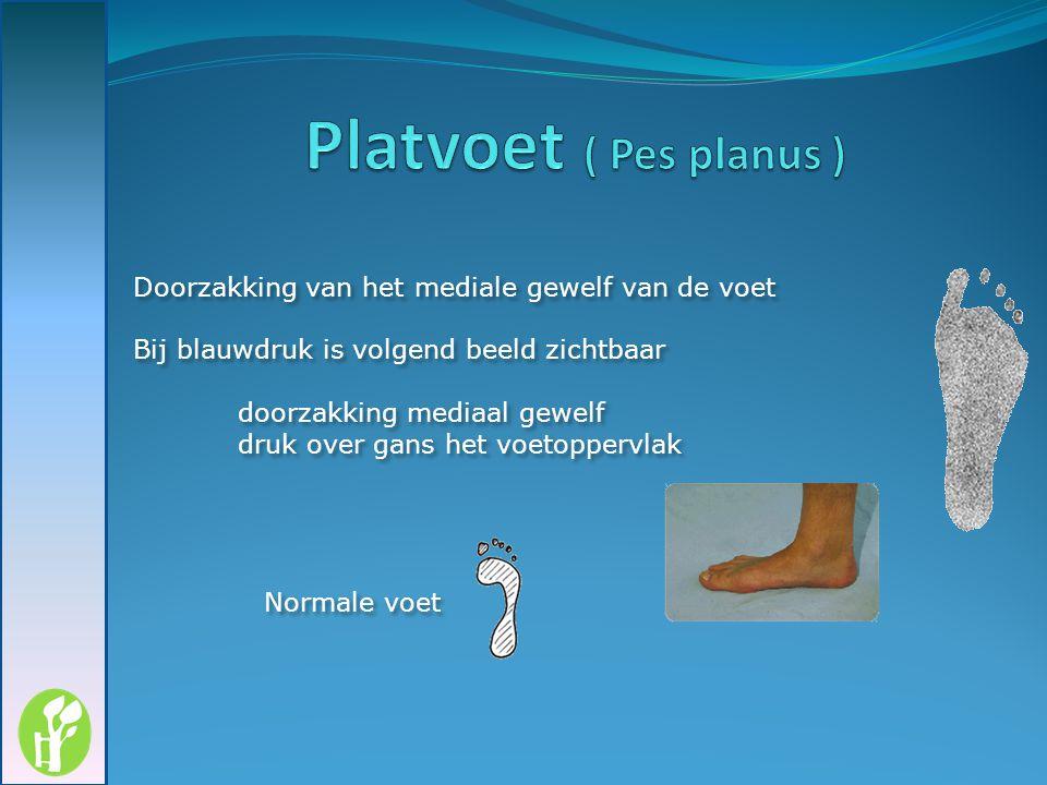 Platvoet ( Pes planus ) Doorzakking van het mediale gewelf van de voet