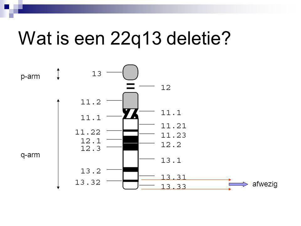 Wat is een 22q13 deletie p-arm q-arm afwezig