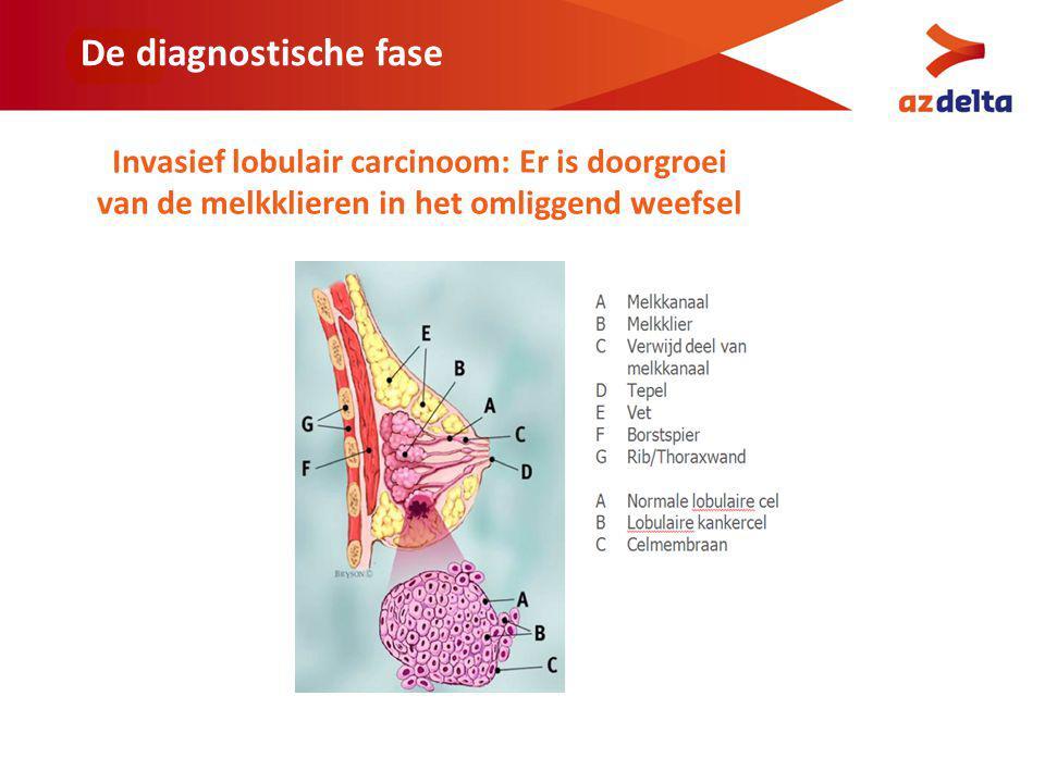 De diagnostische fase Invasief lobulair carcinoom: Er is doorgroei van de melkklieren in het omliggend weefsel.
