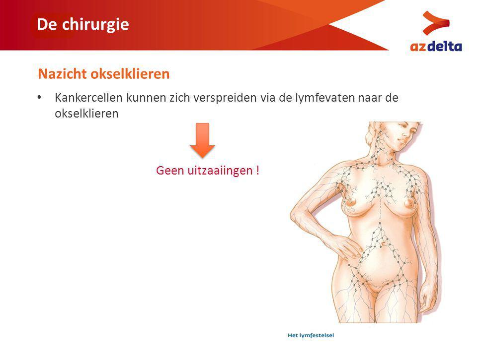 De chirurgie Nazicht okselklieren