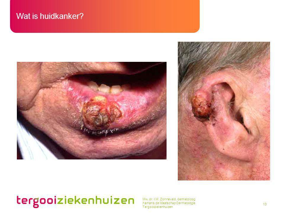 Mw. dr. I.M. Zonneveld, dermatoloog namens de Maatschap Dermatologie Tergooiziekenhuizen