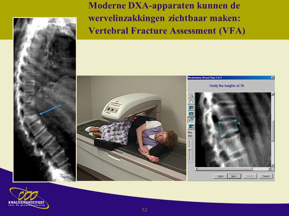 Richtlijn osteoporose en fractuurpreventie ppt download - Moderne apparaten ...
