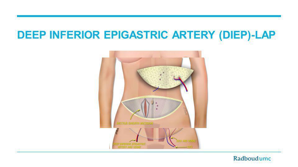 DEEP INFERIOR EPIGASTRIC ARTERY (DIEP)-LAP